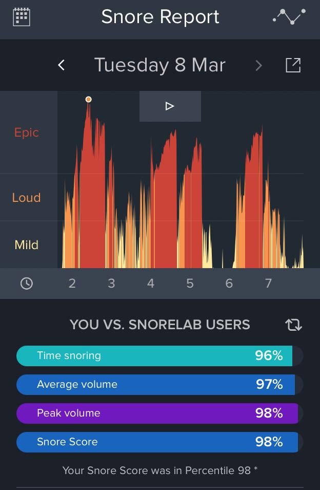 soemac review Stop Snoring Week